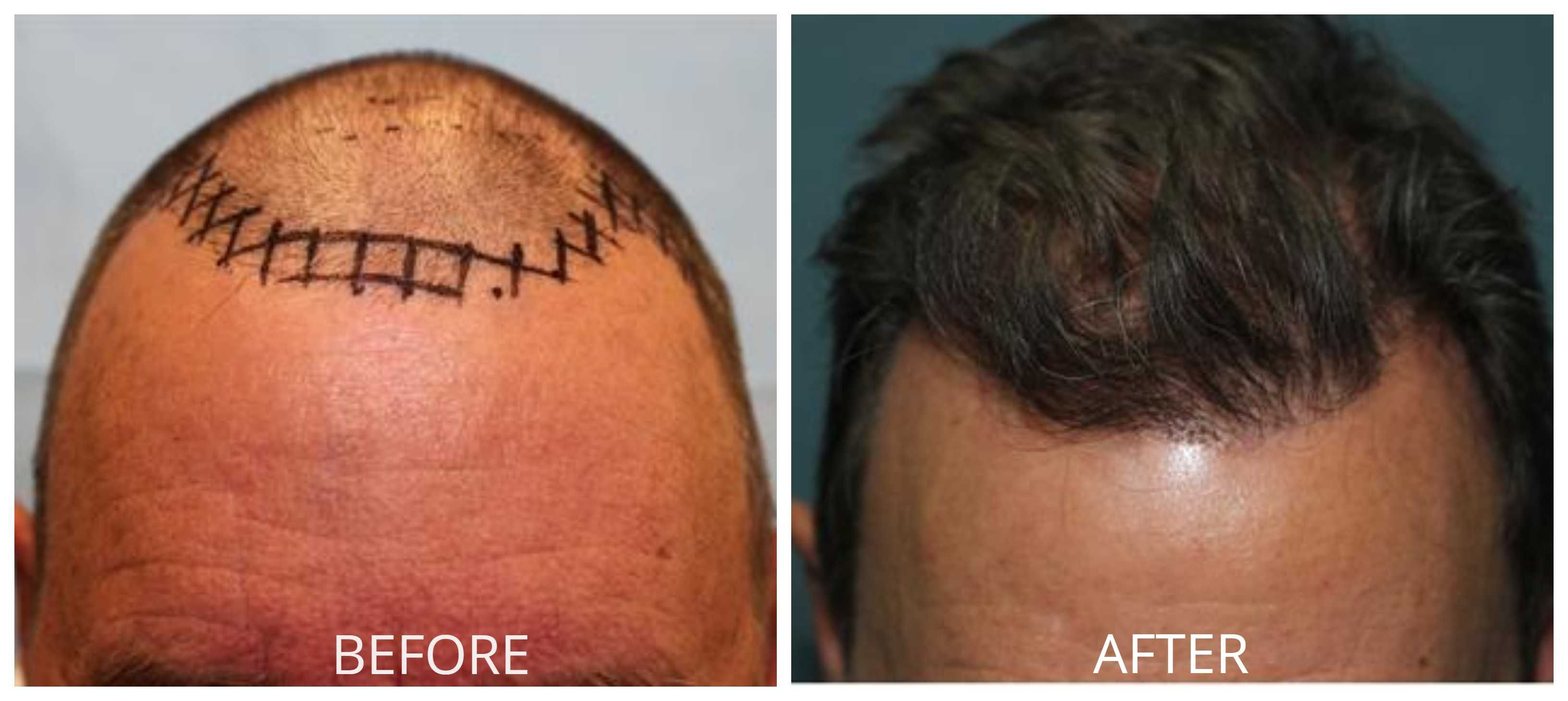 A Handy Guide To Orange County Hair Restoration